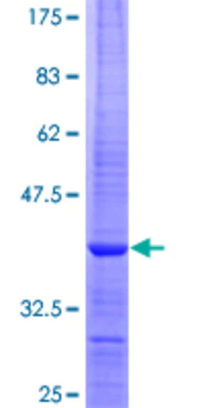 AbnovaHuman TOR2A Partial ORF (NP_569726, 91 a.a. - 190 a.a.) Recombinant