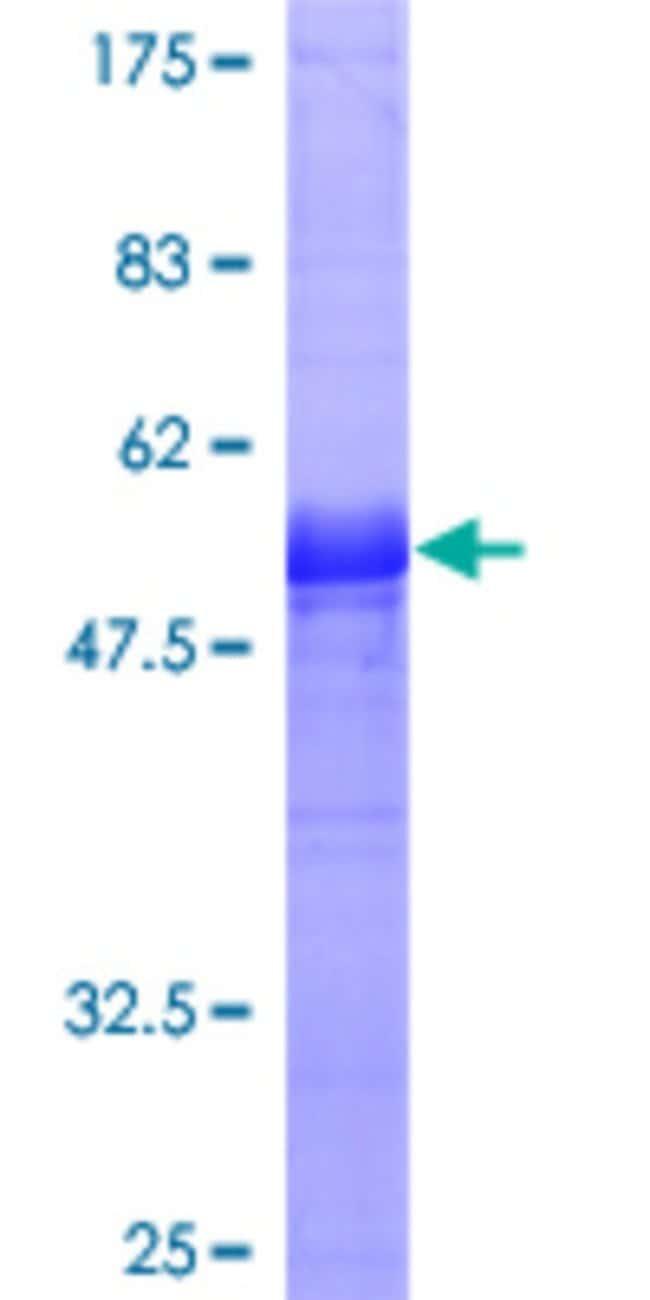 AbnovaHuman PPP2R3B Full-length ORF (AAH09032, 1 a.a. - 176 a.a.) Recombinant