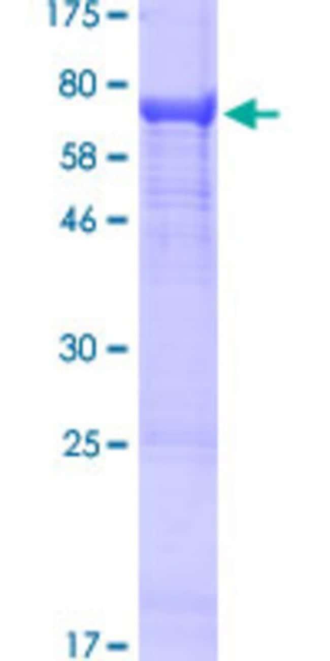 AbnovaHuman IGHV4-31 Full-length ORF (AAH53984.1, 1 a.a. - 470 a.a.) Recombinant