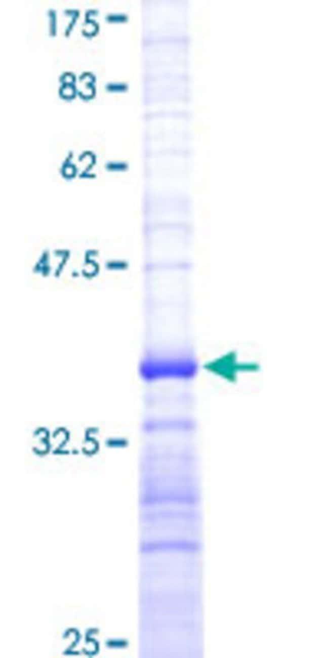 AbnovaHuman DLL1 Partial ORF (NP_005609, 18 a.a. - 109 a.a.) Recombinant