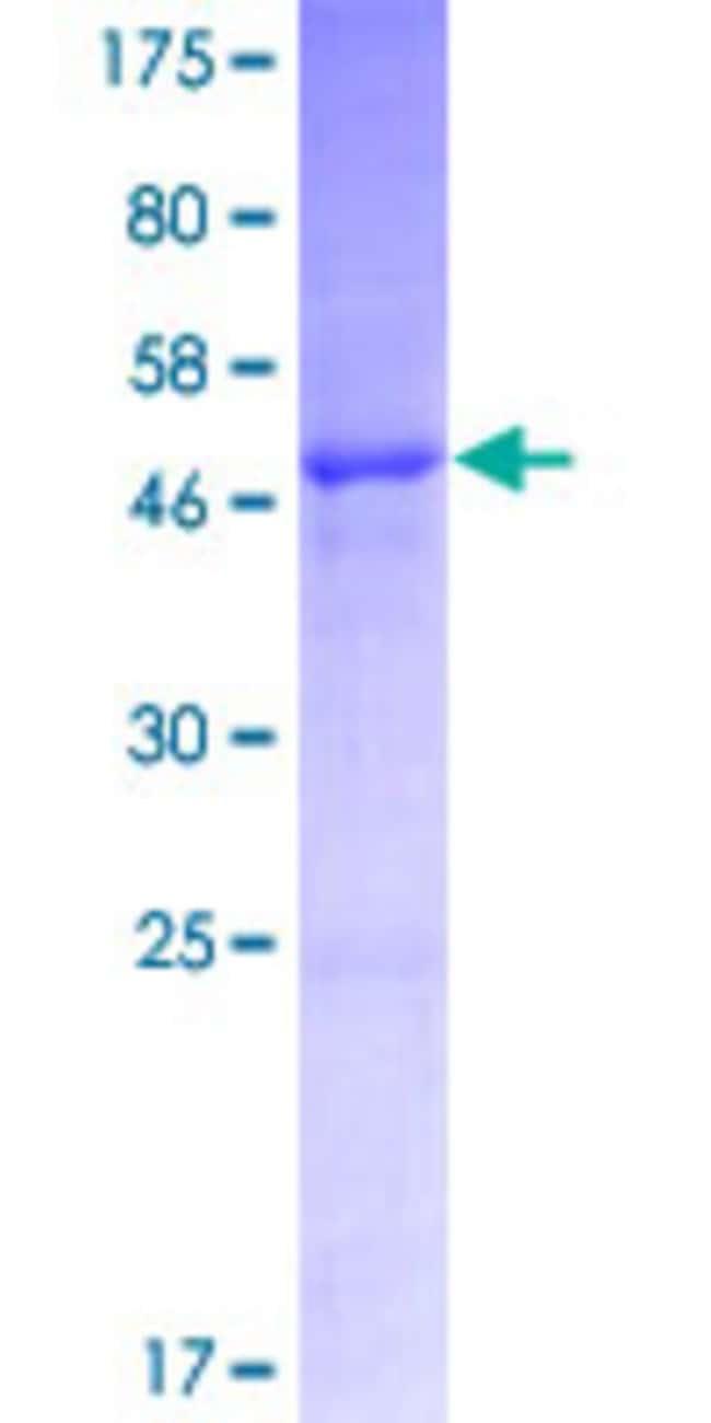 AbnovaHuman IGLV3-21 Full-length ORF (AAH70352.1, 1 a.a. - 233 a.a.) Recombinant