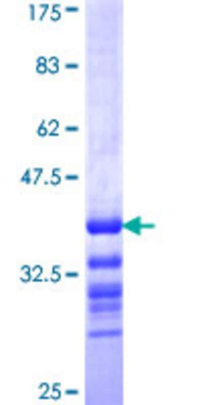 AbnovaHuman TRIB2 Partial ORF (NP_067675, 254 a.a. - 343 a.a.) Recombinant