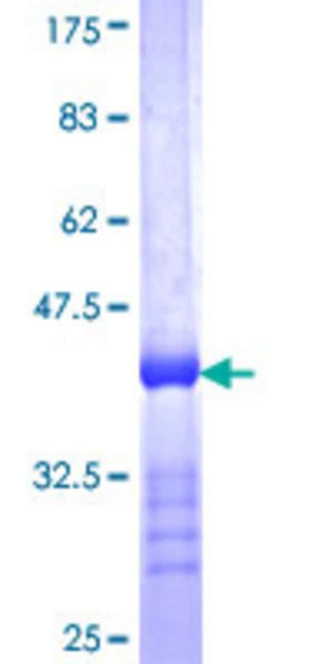 AbnovaHuman REM1 Partial ORF (NP_054731, 162 a.a. - 251 a.a.) Recombinant