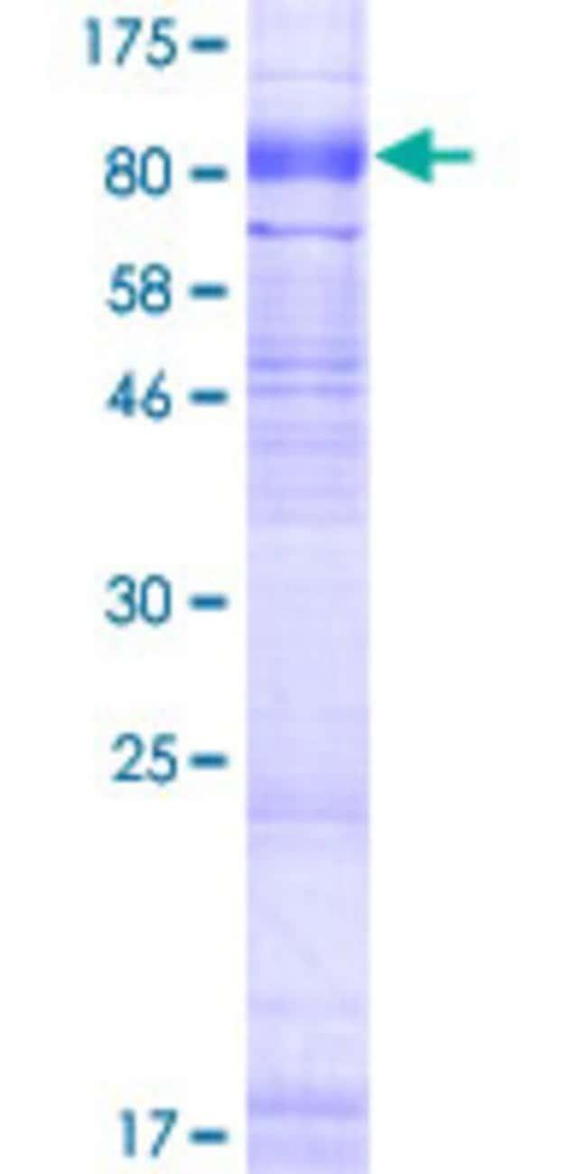 AbnovaHuman SLC6A16 Full-length ORF (AAH34948.1, 1 a.a. - 659 a.a.) Recombinant