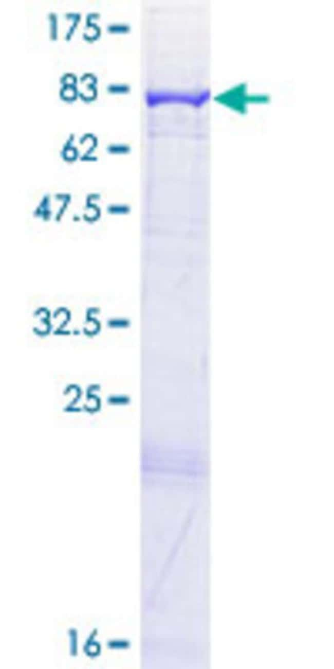 AbnovaHuman ACAD9 Full-length ORF (NP_054768.2, 1 a.a. - 621 a.a.) Recombinant