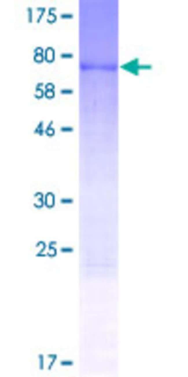 AbnovaHuman NOB1 Full-length ORF (NP_054781.1, 1 a.a. - 412 a.a.) Recombinant