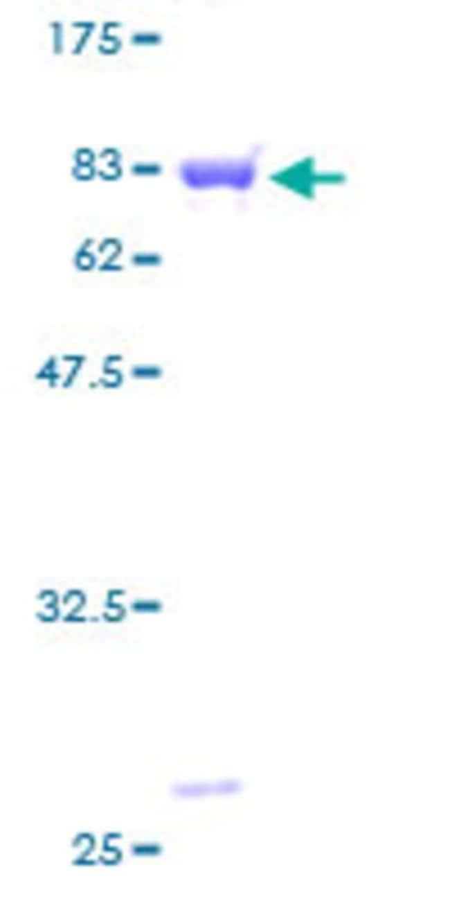 AbnovaHuman DBNL Full-length ORF (AAH31687, 1 a.a. - 430 a.a.) Recombinant