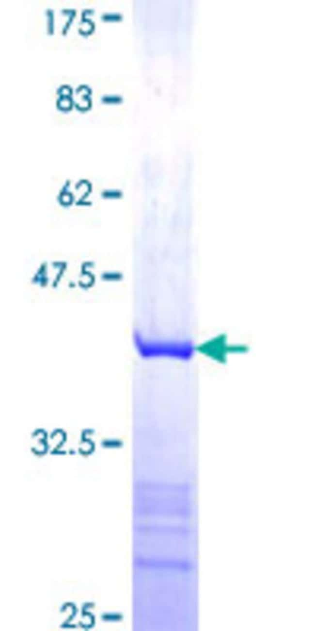 AbnovaHuman COMMD5 Partial ORF (NP_054785, 125 a.a. - 224 a.a.) Recombinant