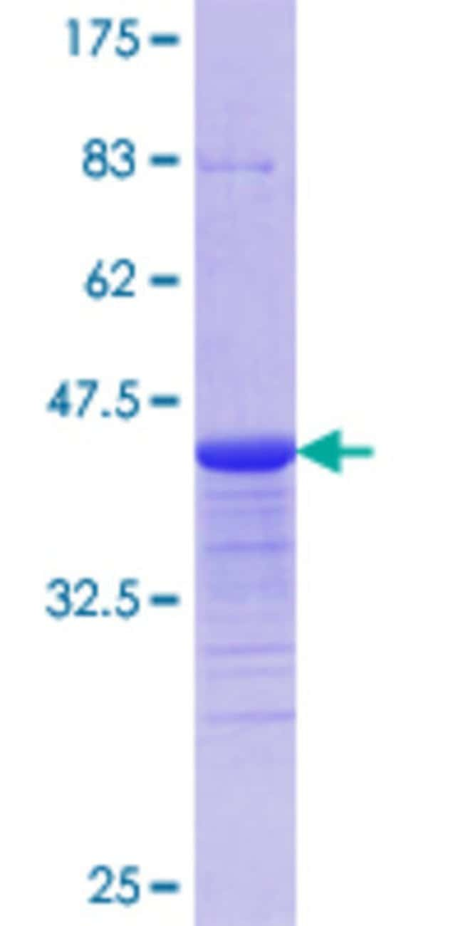Abnova™ Human HIPK2 Partial ORF (AAG41236.1, 961 a.a. - 1065 a.a.) Recombinant Protein with GST-tag at N-terminal 10μg Abnova™ Human HIPK2 Partial ORF (AAG41236.1, 961 a.a. - 1065 a.a.) Recombinant Protein with GST-tag at N-terminal