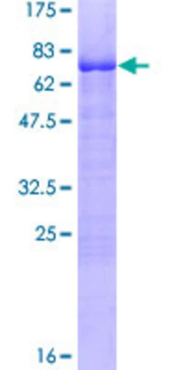 Abnova™Human KLF15 Full-length ORF (NP_054798.1, 1 a.a. - 416 a.a.) Recombinant Protein with GST-tag at N-terminal 10μg Abnova™Human KLF15 Full-length ORF (NP_054798.1, 1 a.a. - 416 a.a.) Recombinant Protein with GST-tag at N-terminal