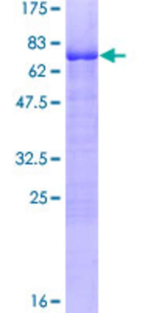 AbnovaHuman KLF15 Full-length ORF (NP_054798.1, 1 a.a. - 416 a.a.) Recombinant