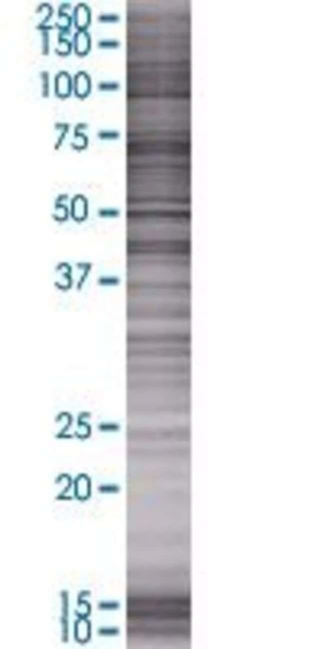 AbnovaATAD2 293T Cell Transient Overexpression Lysate (Denatured) 100μL:Protein