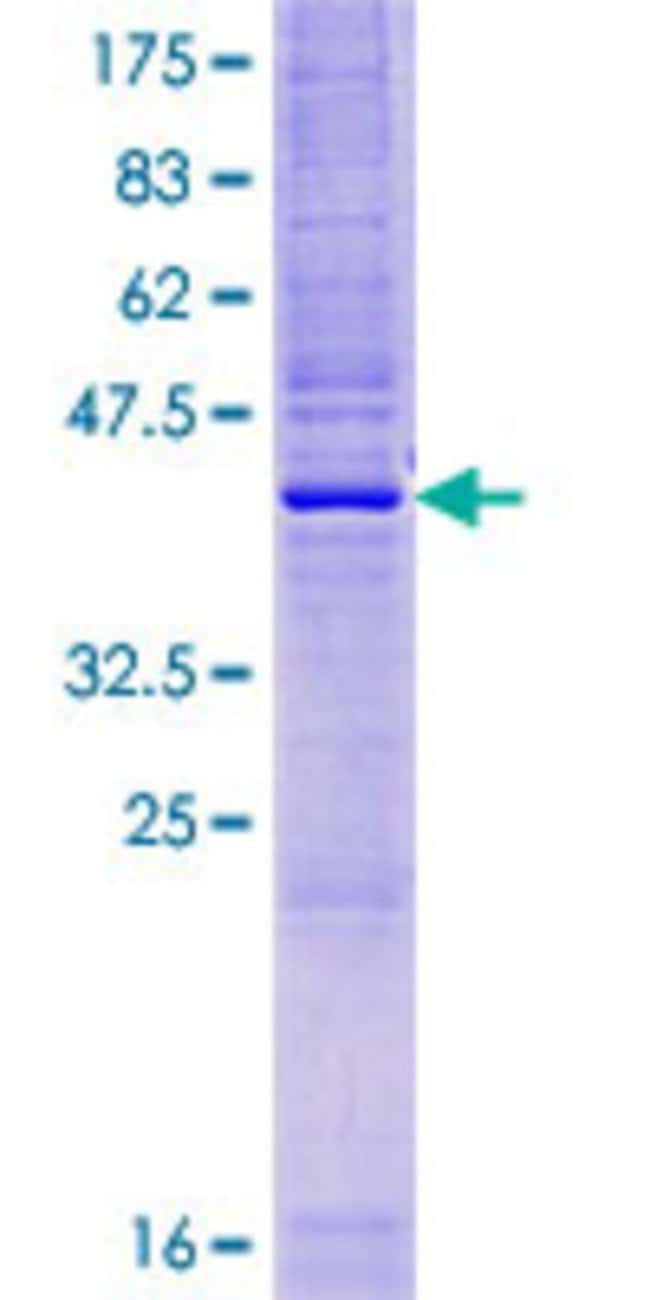 Abnova™ Human HSPC047 Full-length ORF (AAH35371.1, 1 a.a. - 160 a.a.) Recombinant Protein with GST-tag at N-terminal 10μg Abnova™ Human HSPC047 Full-length ORF (AAH35371.1, 1 a.a. - 160 a.a.) Recombinant Protein with GST-tag at N-terminal