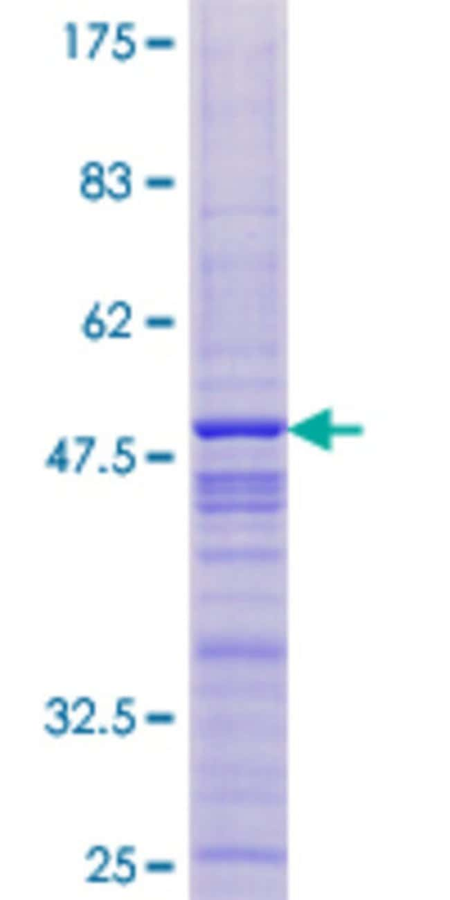 AbnovaHuman THYN1 Full-length ORF (NP_954994.1, 1 a.a. - 166 a.a.) Recombinant