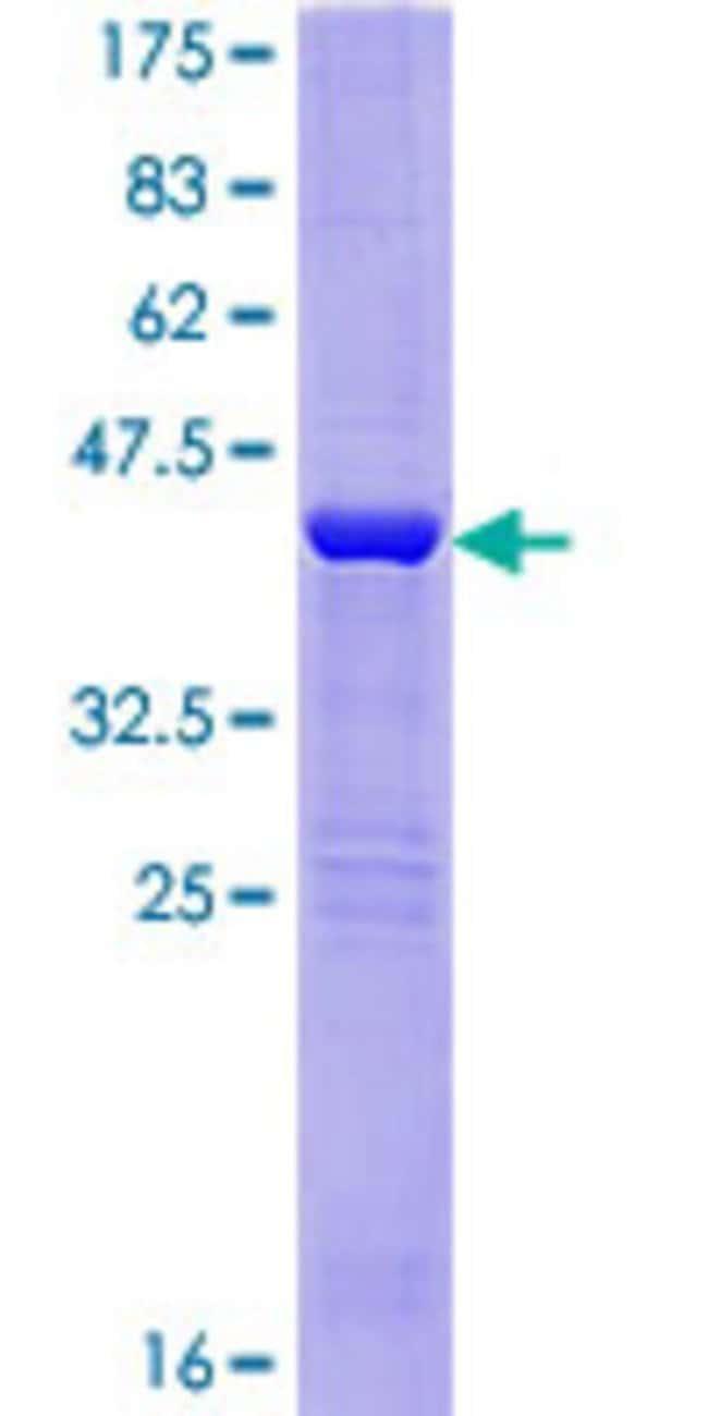 AbnovaHuman RANGNRF Full-length ORF (AAI00018.1, 1 a.a. - 146 a.a.) Recombinant