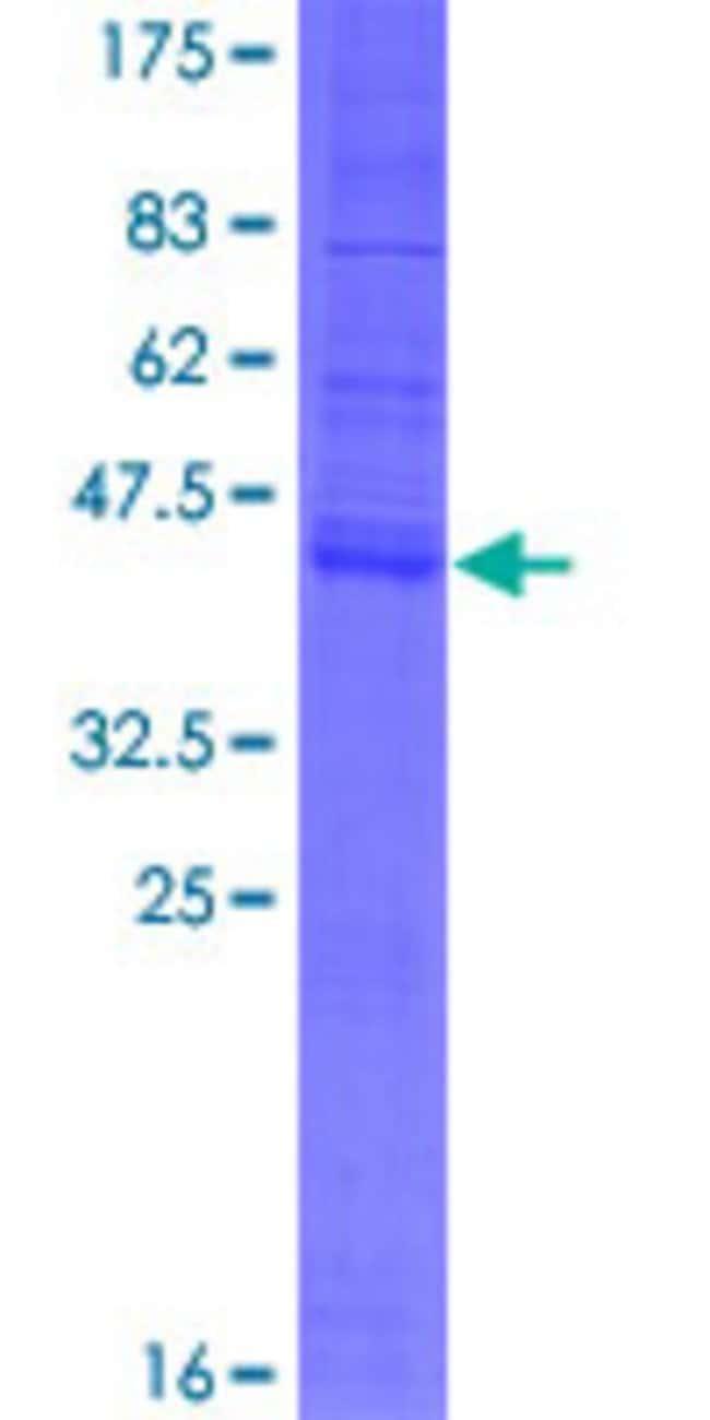 AbnovaHuman HSPC171 Full-length ORF (AAH13412.1, 1 a.a. - 173 a.a.) Recombinant
