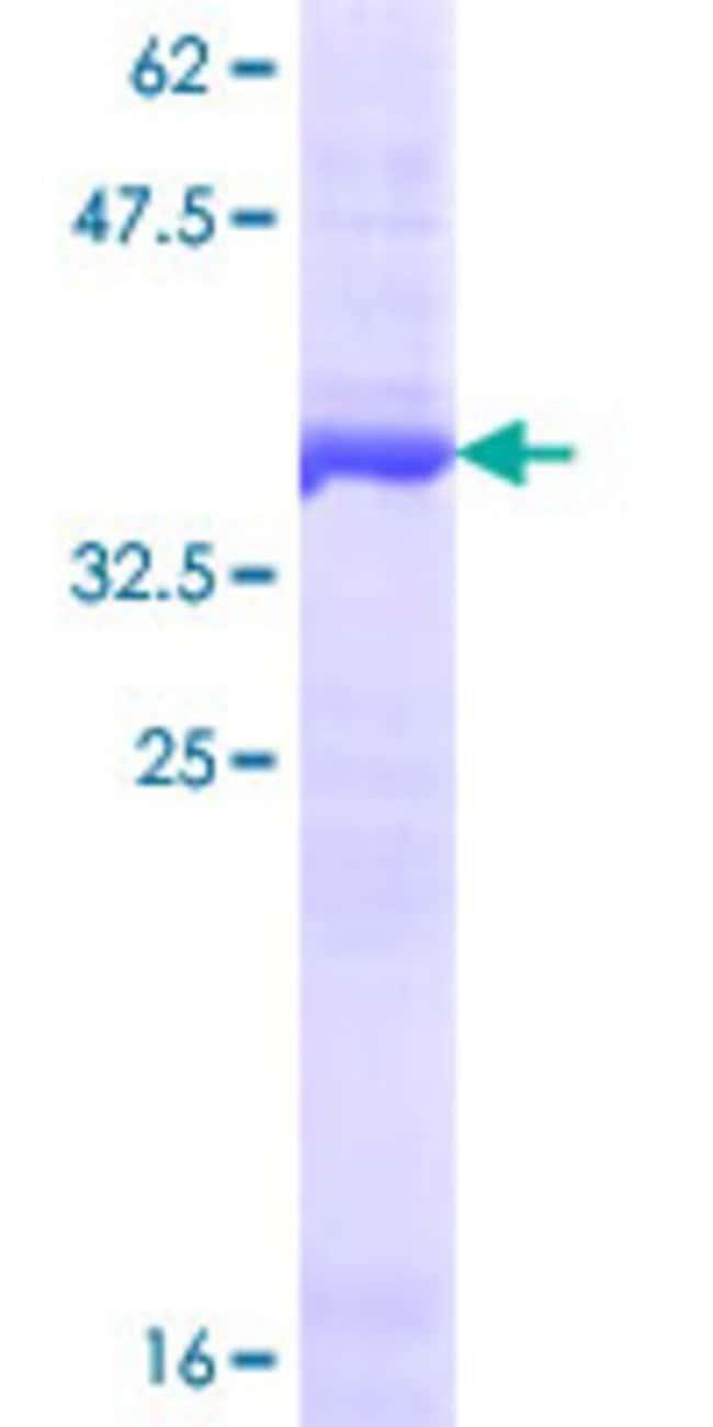 AbnovaHuman RNASEN Partial ORF (NP_037367.2, 1099 a.a. - 1196 a.a.) Recombinant