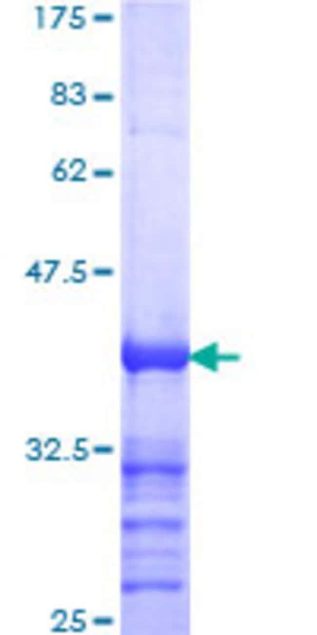 AbnovaHuman TBK1 Partial ORF (AAH34950, 630 a.a. - 729 a.a.) Recombinant