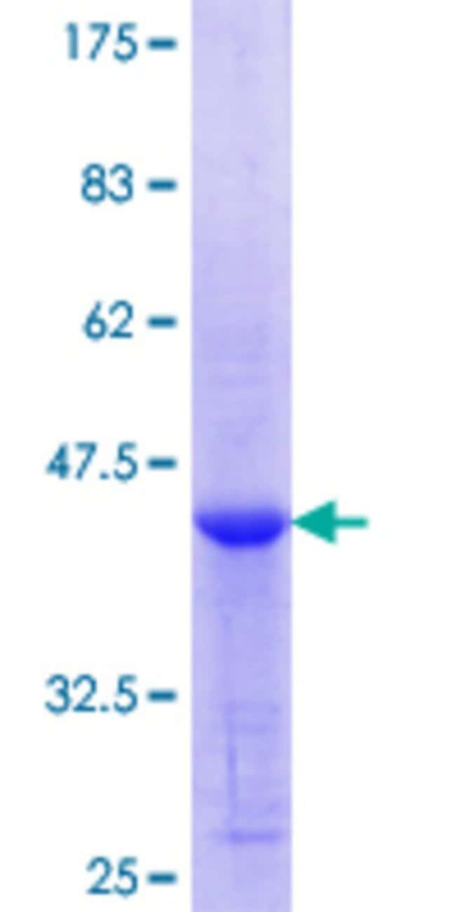 AbnovaHuman TSP50 Partial ORF (NP_037402.1, 214 a.a. - 313 a.a.) Recombinant