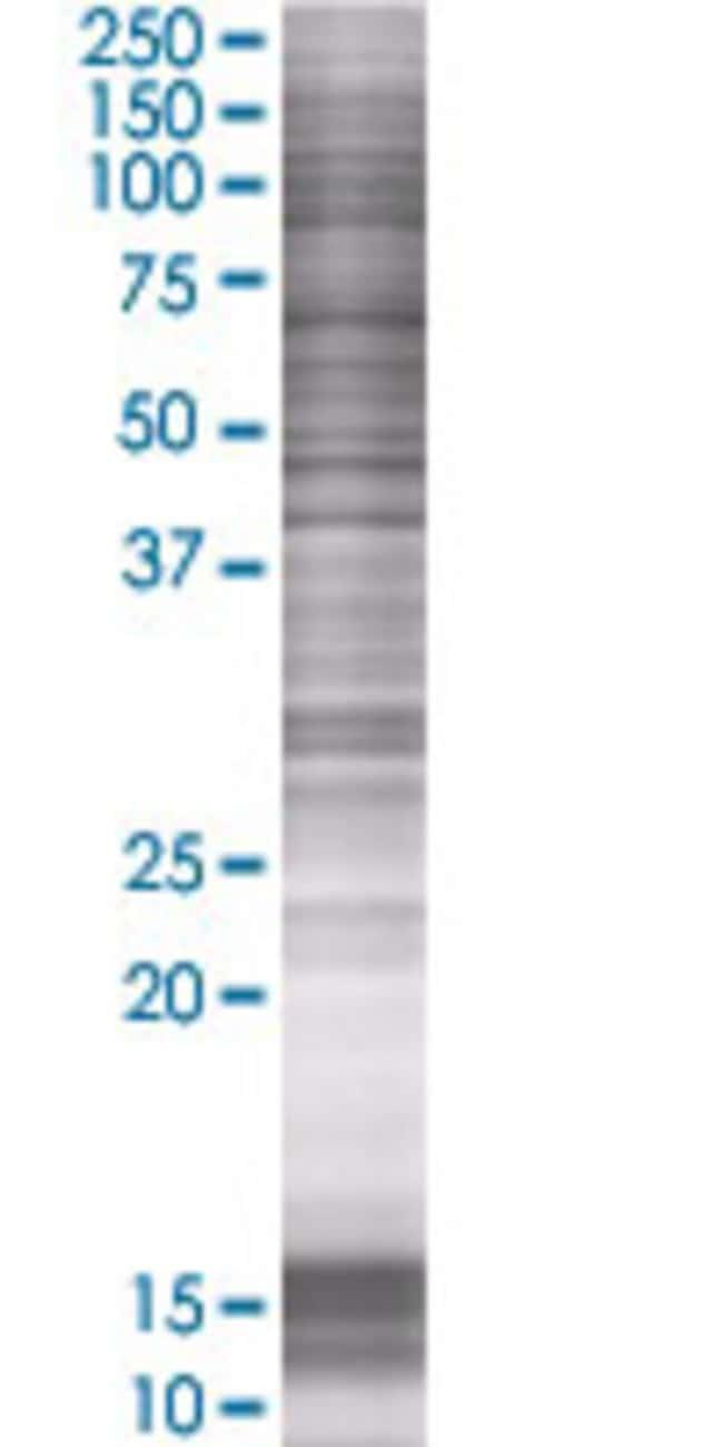 Abnova LGALS13 293T Cell Transient Overexpression Lysate (Denatured) 100µL:Life