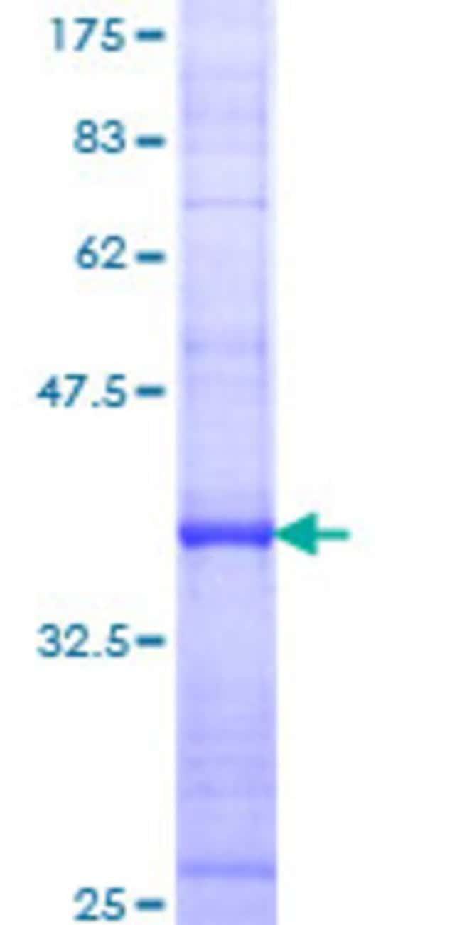 AbnovaHuman BLNK Partial ORF (AAH18906, 301 a.a. - 400 a.a.) Recombinant