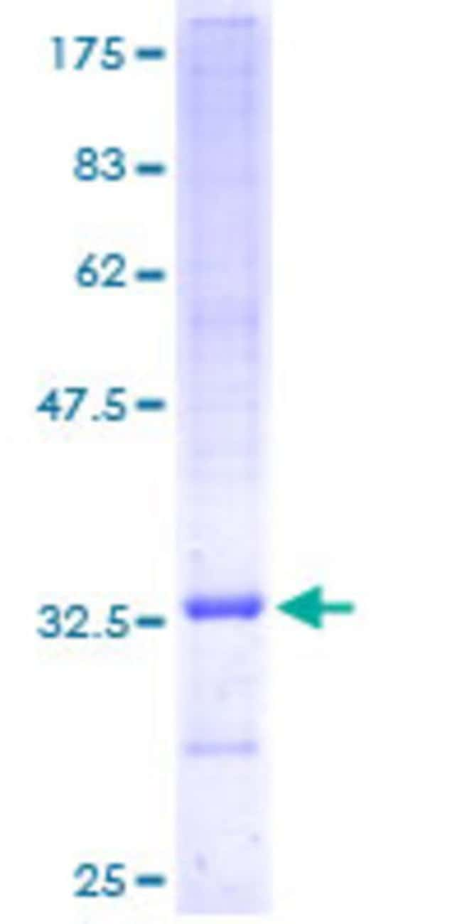 AbnovaHuman UCRC Full-length ORF (AAH05402, 1 a.a. - 63 a.a.) Recombinant