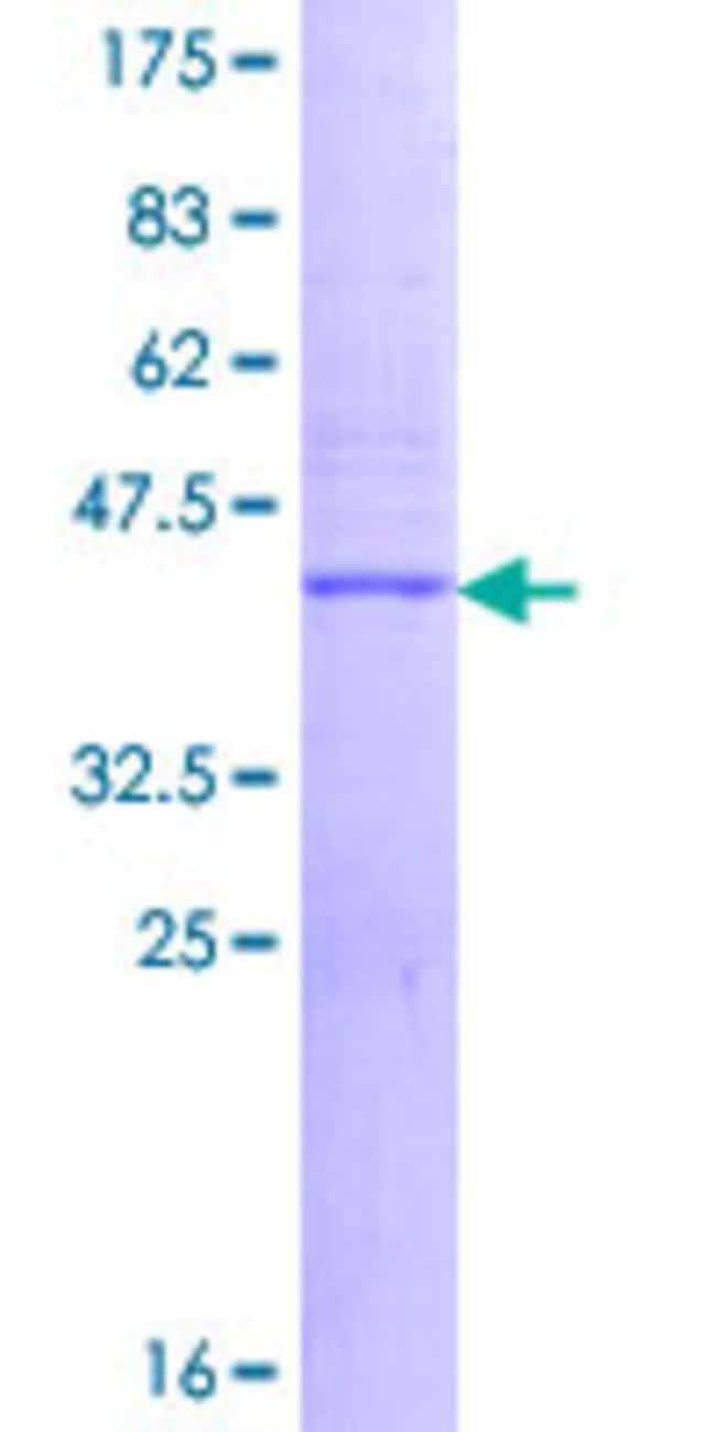 Abnova™Human VPREB3 Full-length ORF (NP_037510.1, 1 a.a. - 123 a.a.) Recombinant Protein with GST-tag at N-terminal 10μg Abnova™Human VPREB3 Full-length ORF (NP_037510.1, 1 a.a. - 123 a.a.) Recombinant Protein with GST-tag at N-terminal