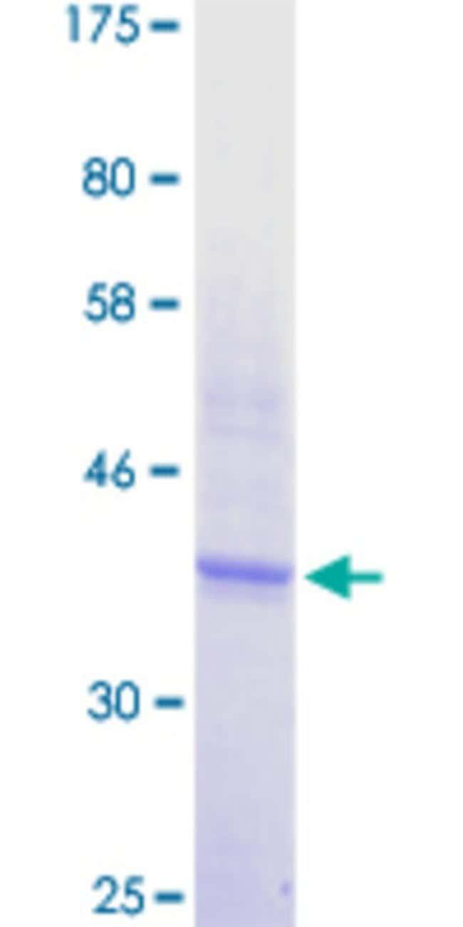 Abnova Human ICOS Partial ORF (NP_036224.1, 21 a.a. - 140 a.a.) Recombinant