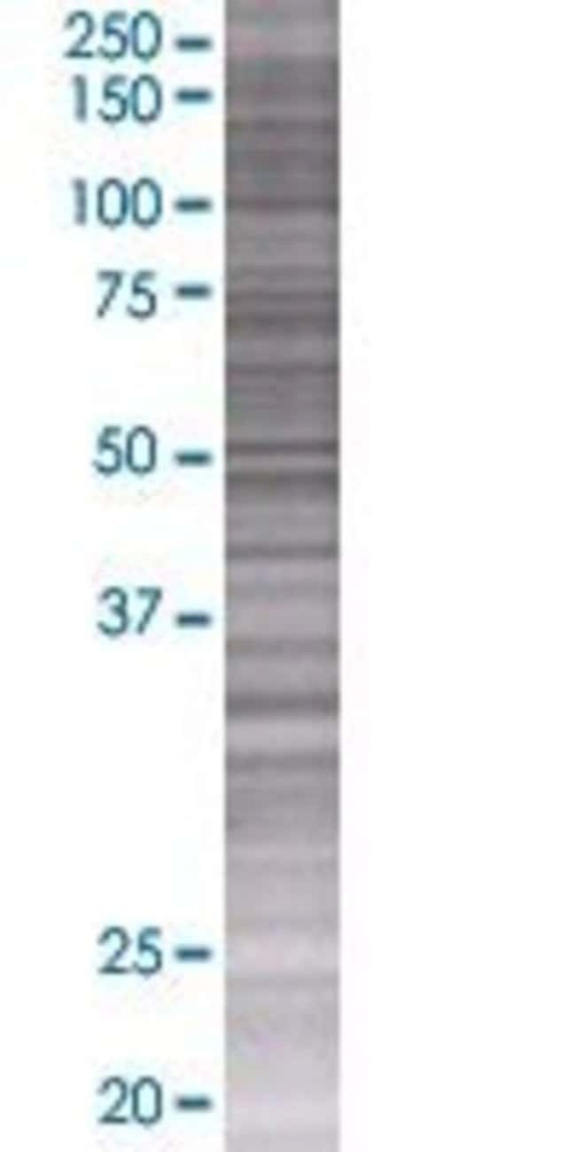 AbnovaALG5 293T Cell Transient Overexpression Lysate (Denatured) 100μL:Protein