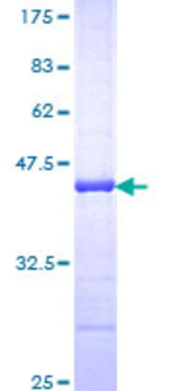 AbnovaHuman ANAPC2 Partial ORF (NP_037498, 716 a.a. - 822 a.a.) Recombinant