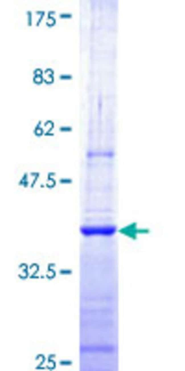 AbnovaHuman CNOT7 Partial ORF (NP_037486, 1 a.a. - 100 a.a.) Recombinant