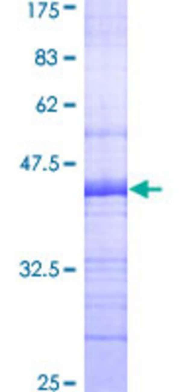 AbnovaHuman SNX8 Partial ORF (AAH21565, 356 a.a. - 465 a.a.) Recombinant
