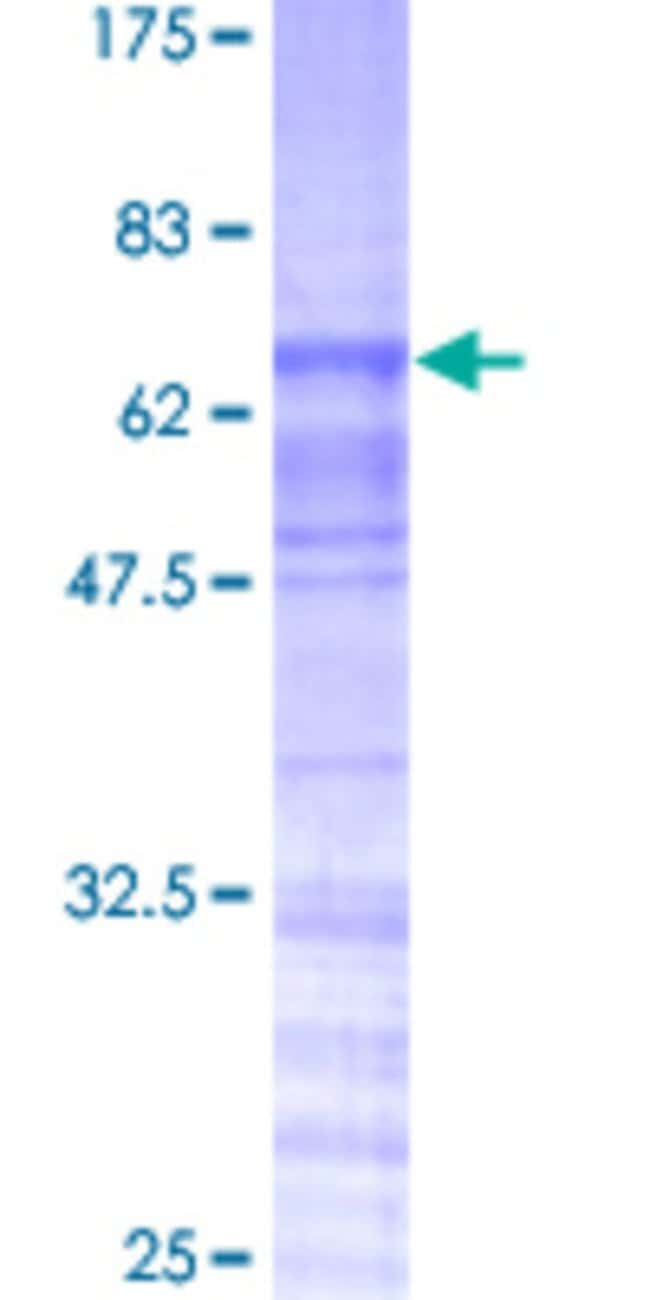 Abnova™Human TRA2A Full-length ORF (AAH17094, 1 a.a. - 282 a.a.) Recombinant Protein with GST-tag at N-terminal 25μg Abnova™Human TRA2A Full-length ORF (AAH17094, 1 a.a. - 282 a.a.) Recombinant Protein with GST-tag at N-terminal