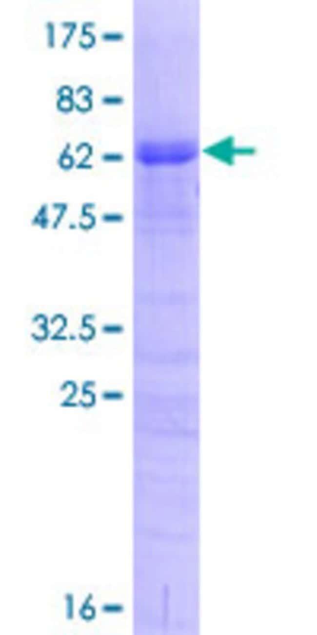AbnovaHuman TRA2A Full-length ORF (NP_037425.1, 1 a.a. - 282 a.a.) Recombinant