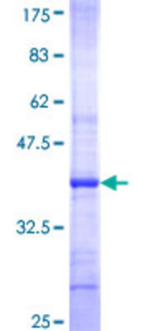 Abnova™ Human ST8SIA5 Partial ORF (NP_037437, 33 a.a. - 132 a.a.) Recombinant Protein with GST-tag at N-terminal 25μg Abnova™ Human ST8SIA5 Partial ORF (NP_037437, 33 a.a. - 132 a.a.) Recombinant Protein with GST-tag at N-terminal