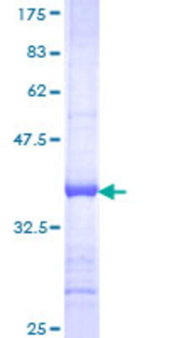 AbnovaHuman SNX15 Partial ORF (NP_037438, 51 a.a. - 139 a.a.) Recombinant
