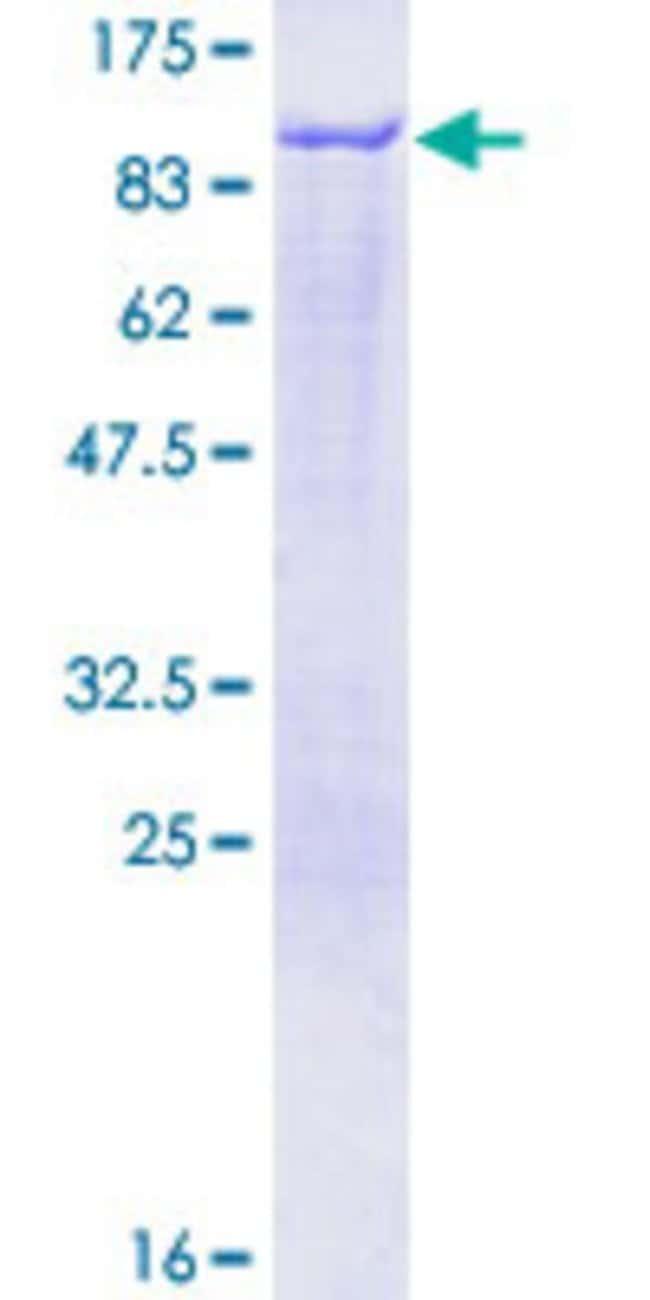 AbnovaHuman EPN1 Full-length ORF (NP_037465.2, 1 a.a. - 550 a.a.) Recombinant