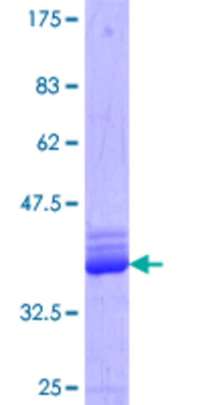 Abnova™Human EPN1 Partial ORF (NP_037465.2, 346 a.a. - 428 a.a.) Recombinant Protein with GST-tag at N-terminal 10μg Abnova™Human EPN1 Partial ORF (NP_037465.2, 346 a.a. - 428 a.a.) Recombinant Protein with GST-tag at N-terminal
