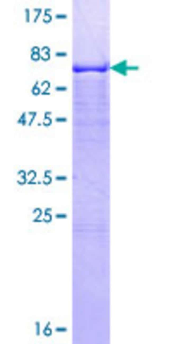 AbnovaHuman GMPPA Full-length ORF (NP_037467.2, 1 a.a. - 420 a.a.) Recombinant