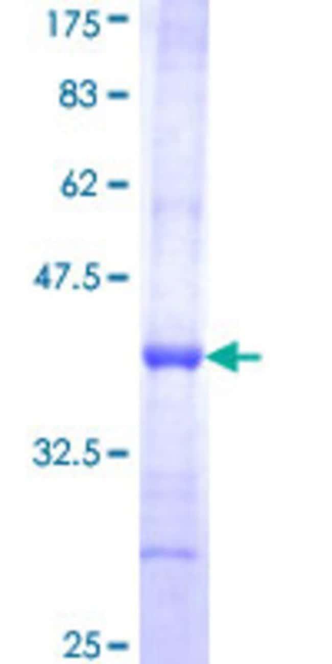 AbnovaHuman GMPPA Partial ORF (NP_037467, 321 a.a. - 420 a.a.) Recombinant