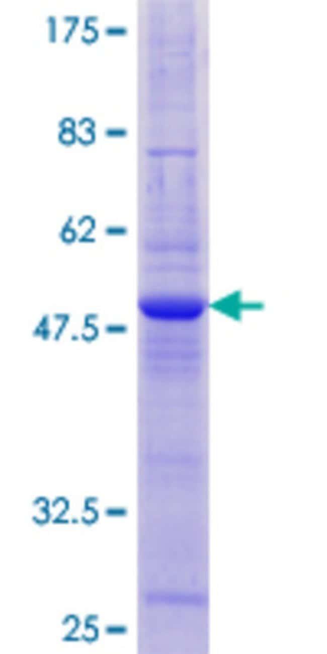 AbnovaHuman TIMM22 Full-length ORF (NP_037469.2, 1 a.a. - 194 a.a.) Recombinant