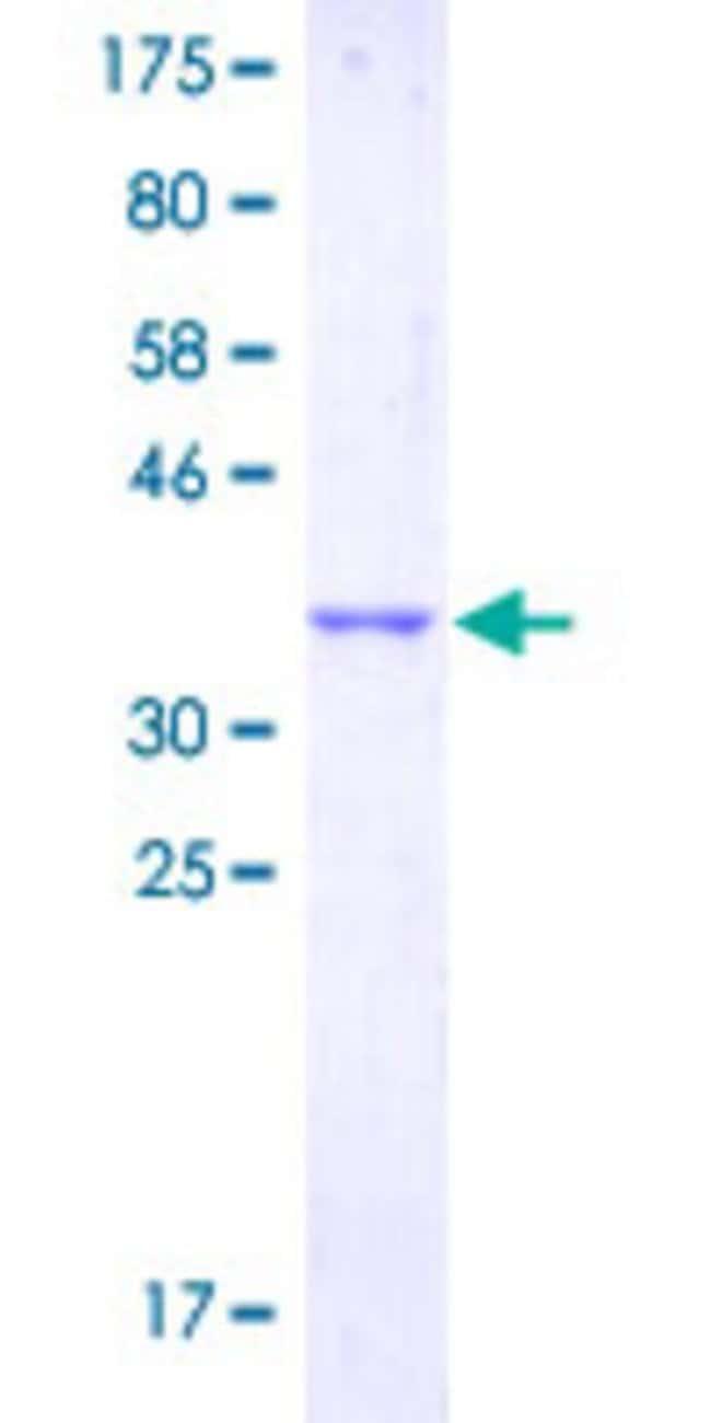 AbnovaHuman GPR132 Partial ORF (NP_037477.1, 281 a.a. - 380 a.a.) Recombinant