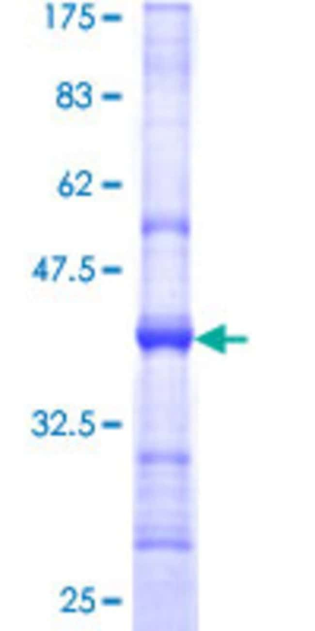 AbnovaHuman DSE Partial ORF (NP_037484, 574 a.a. - 673 a.a.) Recombinant