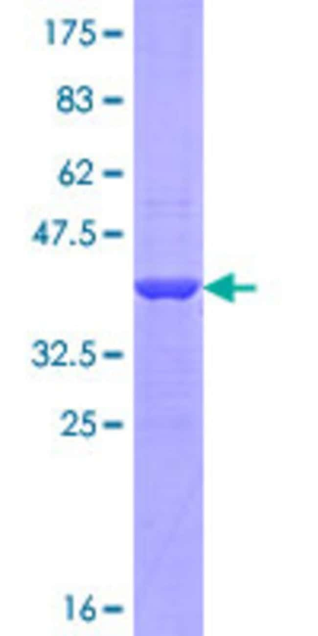 AbnovaHuman PADI1 Partial ORF (NP_037490.1, 1 a.a. - 100 a.a.) Recombinant