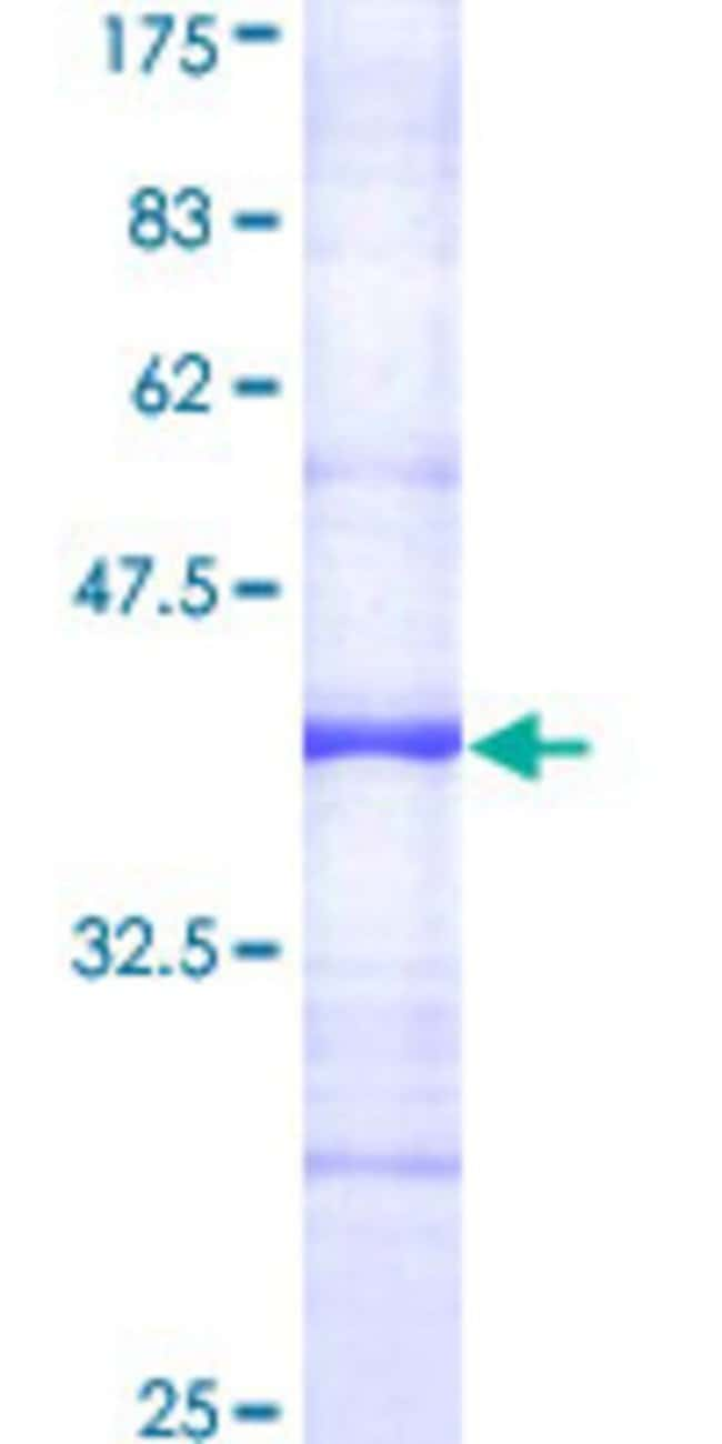 Abnova™Human ANAPC4 Partial ORF (AAH59383, 651 a.a. - 750 a.a.) Recombinant Protein with GST-tag at N-terminal 25μg Abnova™Human ANAPC4 Partial ORF (AAH59383, 651 a.a. - 750 a.a.) Recombinant Protein with GST-tag at N-terminal