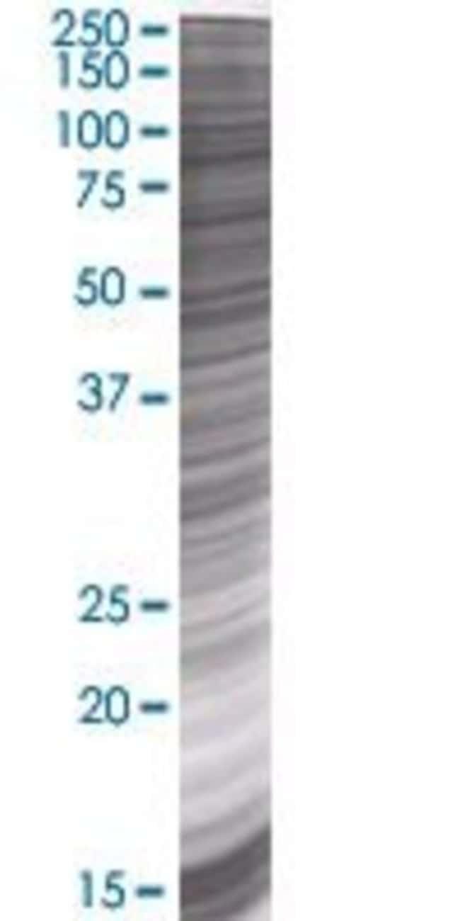 AbnovaANAPC4 293T Cell Transient Overexpression Lysate (Denatured) 100μL:Protein