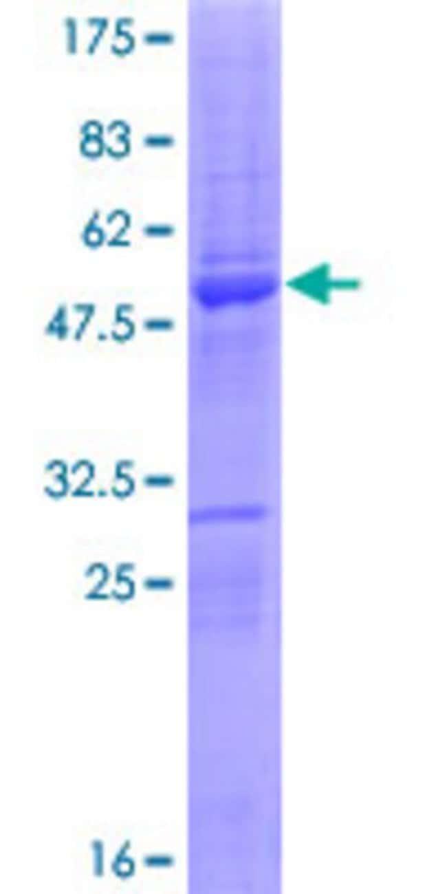 AbnovaHuman SERTAD3 Full-length ORF (NP_037500.2, 1 a.a. - 196 a.a.) Recombinant