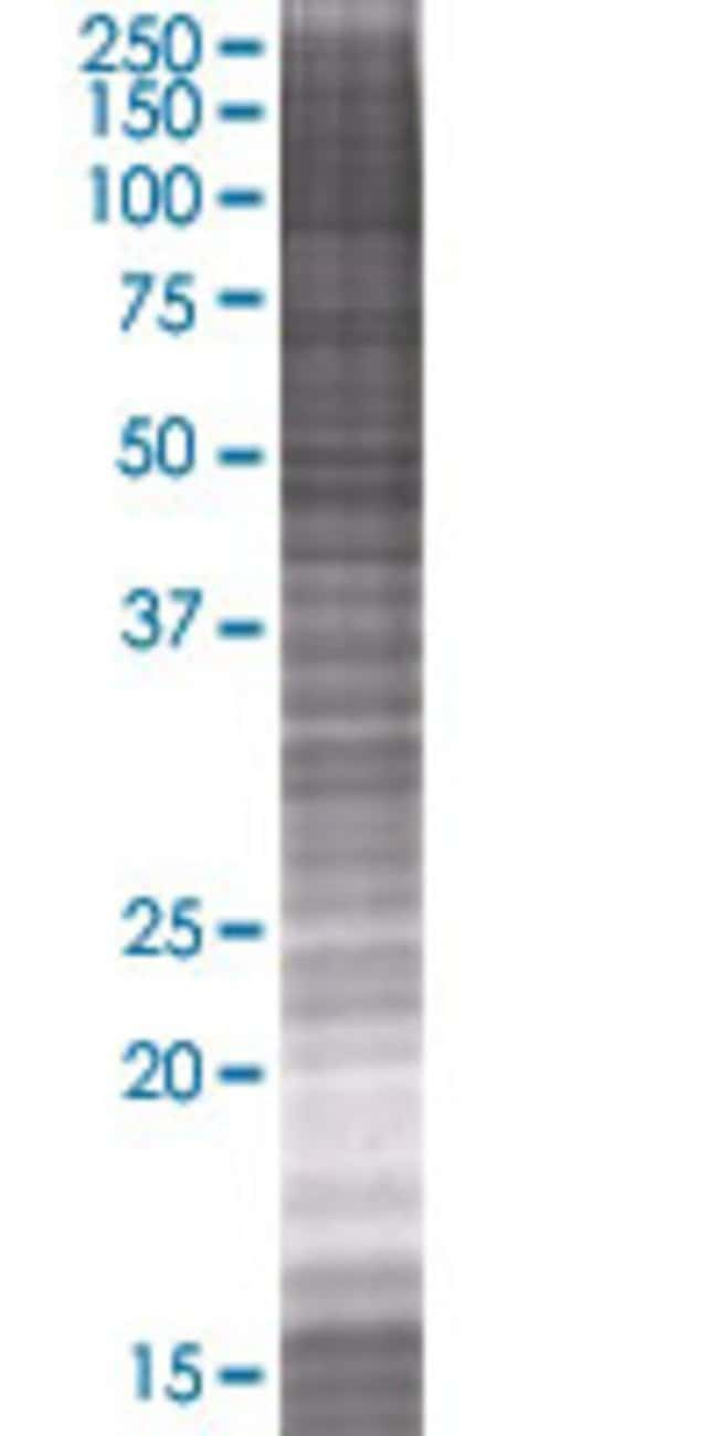 Abnova OKL38 293T Cell Transient Overexpression Lysate (Denatured) 100µL:Life
