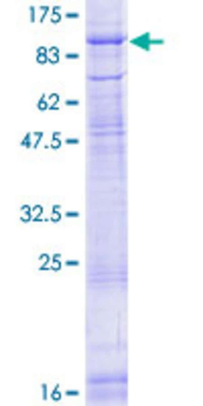 AbnovaHuman POMT2 Full-length ORF (NP_037514.2, 1 a.a. - 750 a.a.) Recombinant