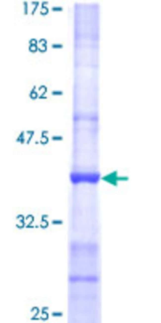 AbnovaHuman POMT2 Partial ORF (NP_037514, 483 a.a. - 580 a.a.) Recombinant